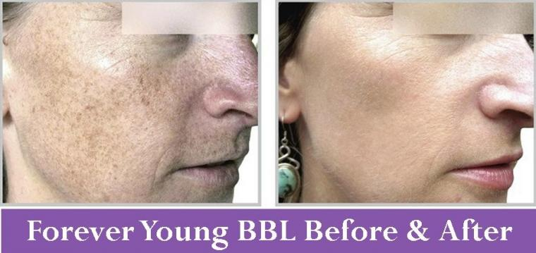 Forever Young BBL Before & After Photos
